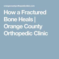 How a Fractured Bone Heals Bone Fracture, Orange County, Clinic, Bones, Healing, Education, Teaching, Recovery, Onderwijs
