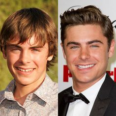 Zac Efron His old smile was better, except the teeth