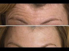 How to Prevent and Reverse Forehead Wrinkles with A Simple 2 Minute Massage - YouTube