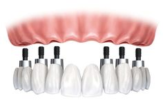 Understanding the Different Types of #Dental Bridges #dentistry #dentalcare #dentalimplants