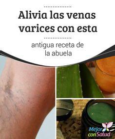 acido urico dieta y tratamiento gota en el pie pdf remedios caseros para el acido urico gota