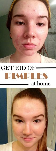 How to detox your skin to get rid of pimples - Indiscreet Beauty..