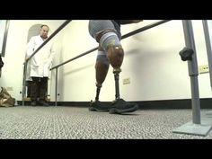 Prosthetic legs woman 10p PKG