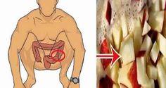 Videz votre colon des déchets toxiques avec cette méthode de nettoyage  et perdre du poids rapidement!