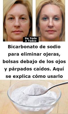 soda to remove dark circles, bags under the eyes and drooping eyelids. Baking soda to remove dark circles, bags under the eyes and drooping eyelids. Beauty Tips For Face, Beauty Guide, Natural Beauty Tips, Health And Beauty Tips, Beauty Secrets, Beauty Products, Health Tips, Beauty Care, Diy Beauty