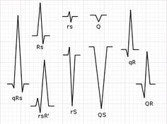 Cardiology ok? wiki Iklan Hans' Medical Notes and article category about Cardiology. Medical News, Medical Science, Bundle Branch Block, Qrs Complex, Cardiac Rhythms, Nursing Courses, College Nursing, Medical Mnemonics, Heart Rhythms