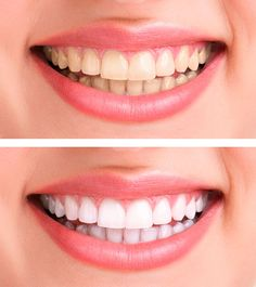 """Statt Zahnpasta: Dieses Hausmittel macht eure Zähne weißer This home remedy makes your teeth more white – """"White teeth without expensive beauty products: You can easily make this woman yourself! Home Teeth Whitening Kit, Teeth Whitening Remedies, Natural Teeth Whitening, Instant Teeth Whitening, Skin Whitening, Beauty Secrets, Beauty Hacks, Beauty Products, Diy Beauty"""