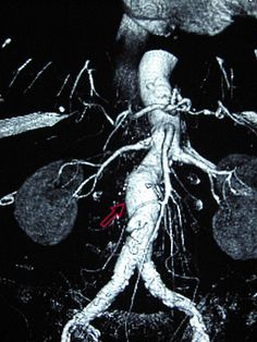 Abdominal aortic aneurysm on 3D imaging.