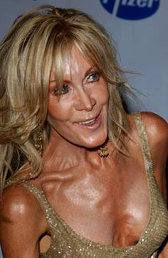 Joan Van Ark of Knots Landing Botched Plastic Surgery, Bad Plastic Surgeries, Plastic Surgery Gone Wrong, Celebrity Plastic Surgery, Joan Van Ark, Celebrities Before And After, Operation, I Feel Pretty, The Ordinary