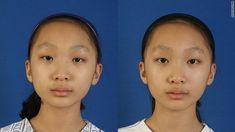 Plastic surgery boom as Asians seek 'western' look  By Kyung Lah, CNN