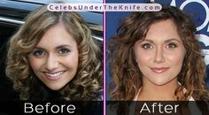 Alyson Stoner's Crazy Nose Job - Before + After Photos. Check out the pics for yourself and we'll let you decide whether they've had plastic surgery or not! Plastic Surgery Photos, Celebrity Plastic Surgery, Alyson Stoner, Rhinoplasty Before And After, Under The Knife, Before After Photo, Celebs, Celebrities, Nose Jobs