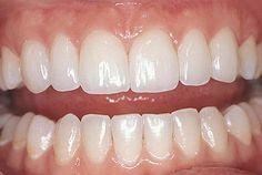 Perfect teeth, very natural