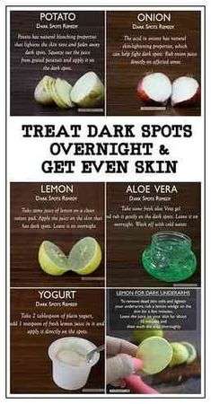 Beauty Tips For Glowing Skin, Natural Beauty Tips, Beauty Skin, Natural Skin Care, Diy Beauty, Beauty Care, Natural Health, Face Beauty, Beauty Secrets