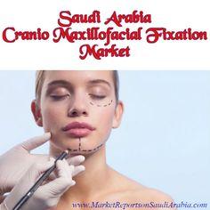#SaudiArabia Cranio #Maxillofacial Fixation (CMF) Market