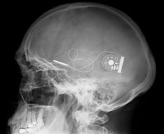 DARPA is working on development of a black box brain implant under the directive of the US Department of Defense.