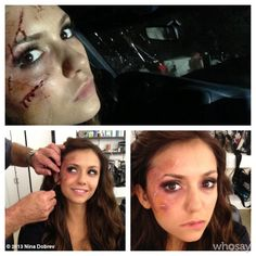 "#TVDTBT to season 5 premiere - Car Crash. #Katherine A behind the scenes look at how we made the ""bloody look"" Ouchie. #TBT"