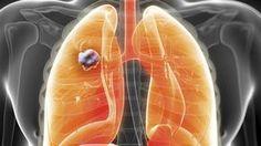 En 1987, le cancer du poumon et le cancer du sein étaient les principales causes de décès par cancer chez les femmes. Jusqu'à aujourd'hui, le fléau du cancer est vu par la communauté scientifique américaine comme le résultat de la corrélation entre l'alimentation industrielle d'aliments transformés et le cancer...