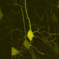 brain cells (layer V motor cortex) at very high magification.