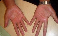 ¿Cansado de Las Manos Sudorosas? Descubre Como Quitar El Sudor de Las Manos Usando 7 Remedios Naturales.