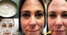 Táto pleťová maska vyhladí aj tie najhlbšie vrásky! | Báječné Ženy Botox Facial, Facial Hair, Double Menton, Les Rides, Unwanted Hair, Wash Your Face, Cellulite, Anti Aging, Remedies