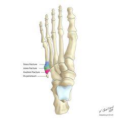 Supinated Foot