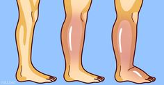 Experiencing some puffiness, swollen legs and feet, and also stiff joints are unpleasant symptoms of water retention. There are actually three types of water retention. Essential Oils Guide, Essential Oil Uses, Water Retention, Military Diet, Varicose Veins, Anti Cellulite, Organic Recipes, Body Art Tattoos, Aromatherapy