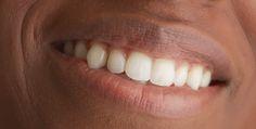 Produk ini juga mampu melembabkan bibir sehingga selain anda mendapatkan bibir menjadi merah, kelembaban dalam penampilan bibir juga akan tetap terjaga. Jadi, tunggu apalagi gunakan obat pemerah bibir yang hitam satu ini untuk mendapatkan penampilan sempurna dan tentunya segar merona.