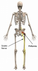 Sciatic Nerve, Nerve Pain, Sciatica, Nerve Anatomy, Piriformis Syndrome, Back Injury, Scoliosis, Noodle Soup, Feel Better