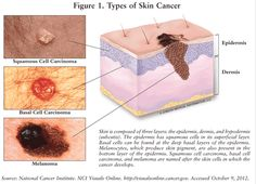 The three main forms of skin cancer: basal cell carcinoma, squamous cell carcinoma, and melanoma. It's very important to take care of your skin.