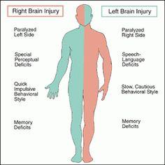 Stroke: Mini-stroke Warns That Major Stroke Is Near.