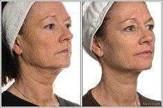 5 week facelift JEM Skincare: Results Eyelid Cream, Lower Face Lift, Face Lift Exercises, Olay Regenerist, Dermal Fillers, Wrinkle Remover, Jawline, Beauty Full, Sculpting