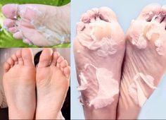 Take Away The Dead Skin Off Of Your Feet ❌ #Beauty #Trusper #Tip