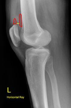 Knee joint effusion   Radiology Case   Radiopaedia.org