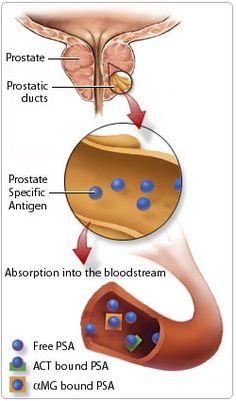 mejor tratamiento de próstata en hyderabadi
