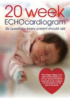 Echocardiogram 20 week scan #CongenitalHeartDefects.  #CHDaware