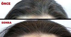 Anti Aging Facial, Best Anti Aging, Grey Hair, White Hair, Dark Circles Under Eyes, How To Lighten Hair, Grow Long Hair, Moisturize Hair, Keratin