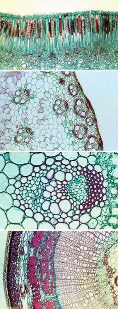 Microscopic plant cells