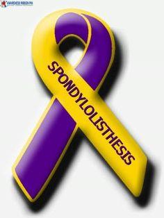 Spondylolisthesis- living in pain daily Chronic Pain, Fibromyalgia, Chronic Illness, Cauda Equina Syndrome, Spondylolisthesis, Back Surgery, Spine Health, Personalized Ribbon, Ankylosing Spondylitis