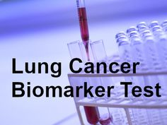 An Introduction to Lung Cancer Biomarker Testing. Tab to read. Lung Cancer Treatment, Lunges, Drugs, Health Care, Therapy, Medical, Blog, Medicine, Blogging
