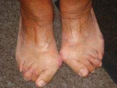 hallux valgus Being Ugly, Fingers, Bunion, Health