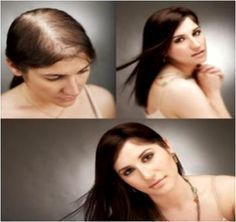 Stimulating hair follicles for thinning hair