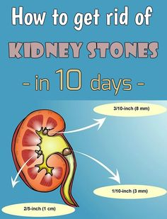 Learn how to get rid of kidney stones in 10 days.
