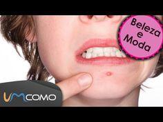 Máscaras Faciais Caseira para Tratar Espinhas no Rosto - YouTube