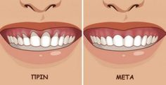 Top Oral Health Advice To Keep Your Teeth Healthy. The smile on your face is what people first notice about you, so caring for your teeth is very important. Unluckily, picking the best dental care tips migh Gum Health, Teeth Health, Oral Health, Dental Health, Dental Care, Public Health, Health Care, Grow Back Receding Gums, Health Products