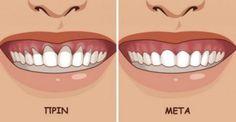Υγεία - Τα άρρωστα ούλα μπορούν να προκαλέσουν ντροπή και δυσφορία. Τότε, απομακρύνονται από τα δόντια και δημιουργείται κενό που γεμίζει με βακτήρια. Αυτό προκαλε