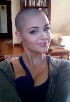 love her beautiful baldness