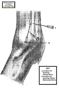 Low four point nerve block