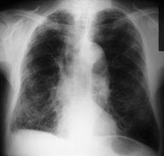 Cuando el asma y la EPOC se solapan ¿cómo actuar?