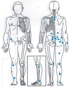Sciatica Pain ( Hijama Points )