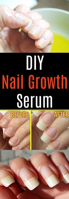 Can't get those nails to grow? No worries, we've got the perfect DIY nail growth serum for you! With all natural ingredients, and proven to work, this DIY nail growth serum will not only make your nails grow (FAST), but will also moisturize dry, brittle nails, nourish the skin, and strengthen weak nails. This recipe uses aloe vera gel, castor oil, vitamin E, and garlic. Each and every one of these ingredients are scientifically proven to promote nail growth, strengthen nails, and hydrate…